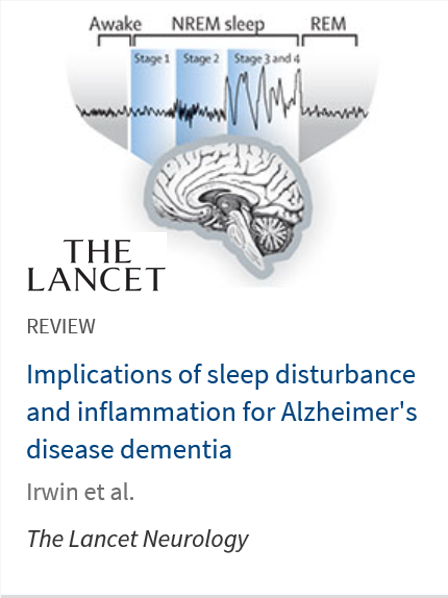 Implications of sleep disturbance and inflammation for Alzheimer's disease dementia